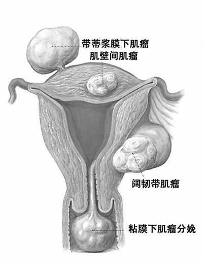 子宫肌瘤是良性肿瘤