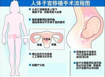 首例子宫移植生育有望成功