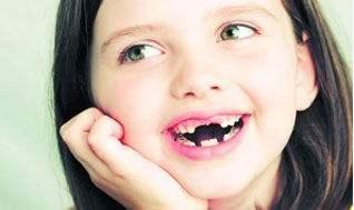 姚遥:儿童窝沟封闭 有效预防龋齿