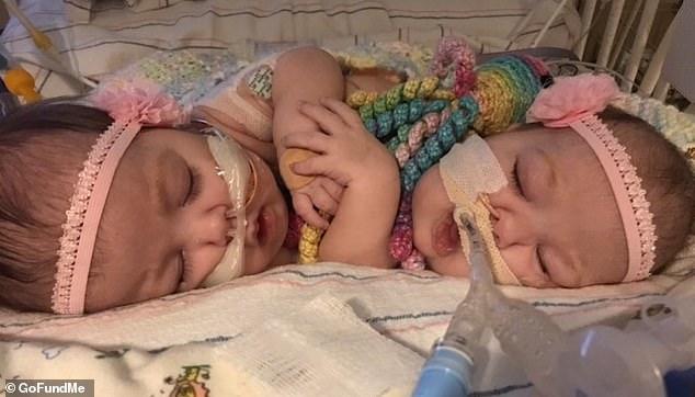 美国连体婴姐妹经历7台手术成功分离 与家人团聚