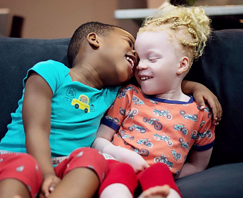 黑人妈妈试管受精生下了两个肤色完全不同的双胞胎
